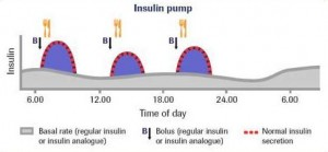 insulin pump basal rate